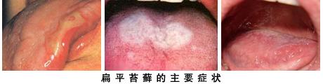 口腔扁平苔藓治得好吗?